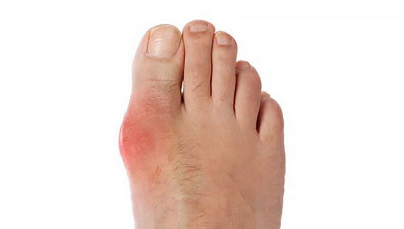 Ayurvedic Treatment for Gout
